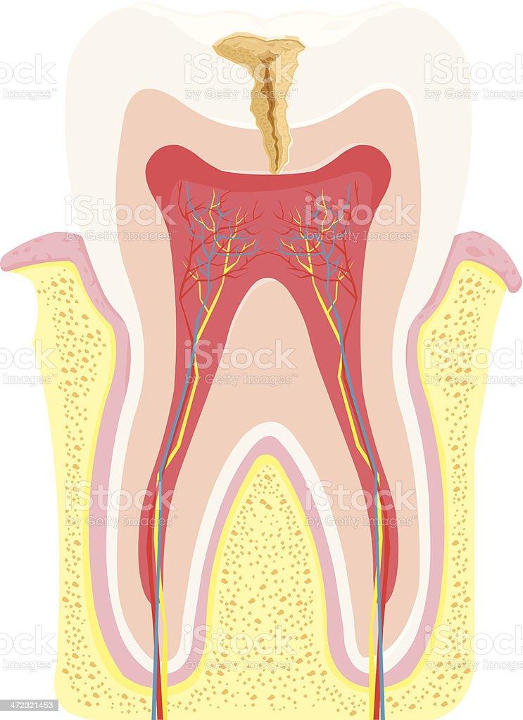 Zahn Verfall Anatomie Stock Vektor Art und mehr Bilder von Anatomie ...