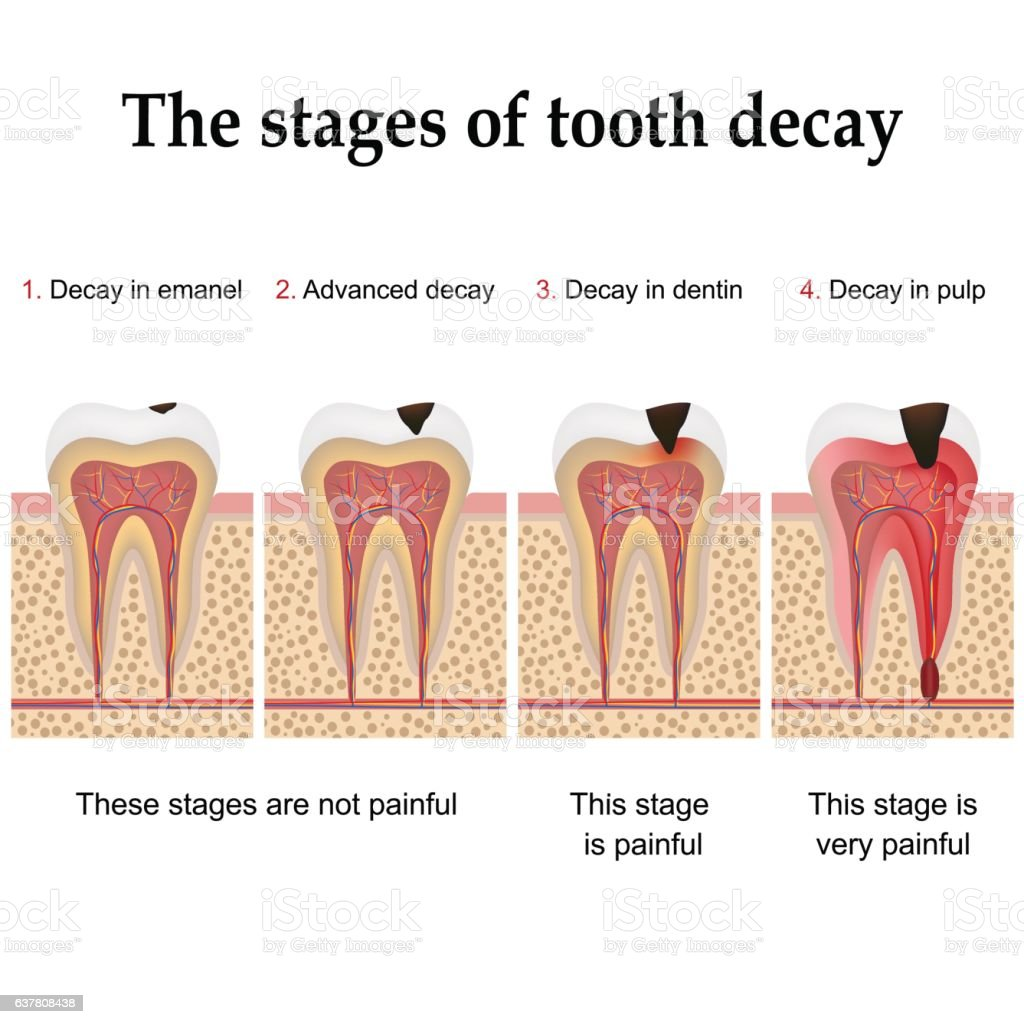 Tooth decay formation vector art illustration