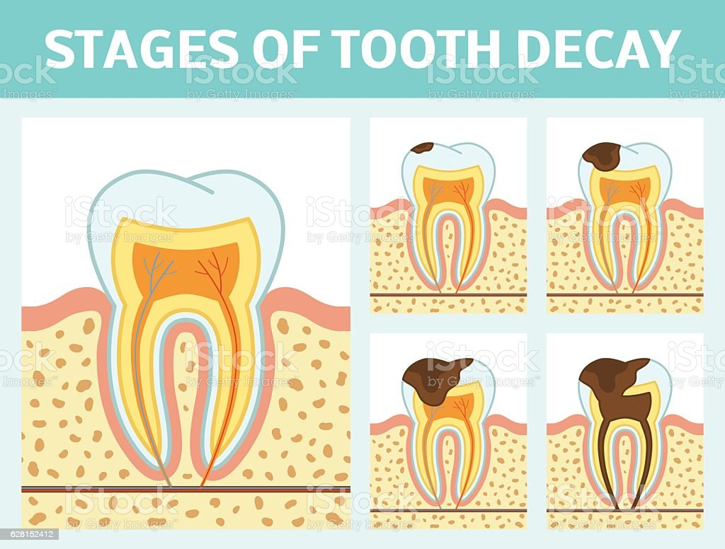 Tooth decay stages vector art illustration