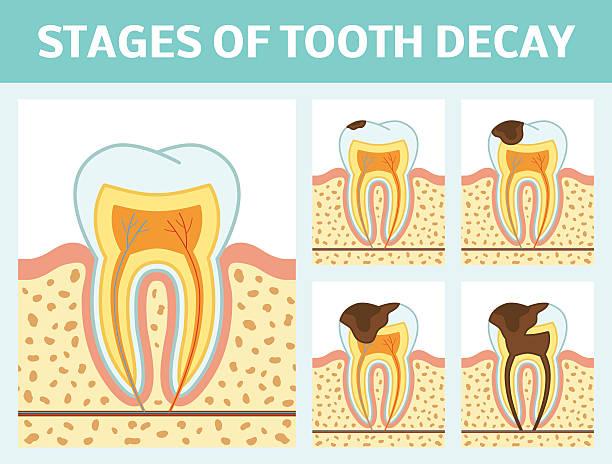 stockillustraties, clipart, cartoons en iconen met tooth decay stages - dentine