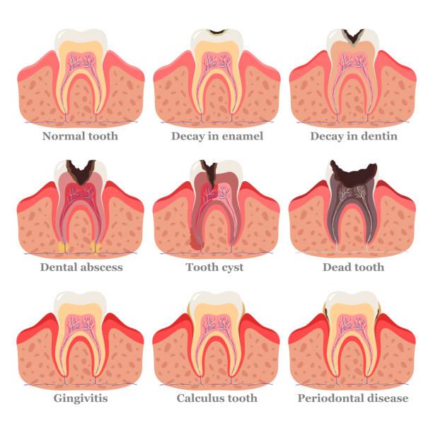 bildbanksillustrationer, clip art samt tecknat material och ikoner med tandstörningar set, platt vektor illustration. friska och ohälsosamma tänder. tandproblem och sjukdomar. - tandsten