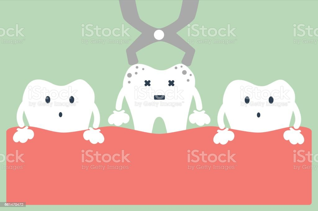tooth extraction vector art illustration