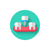 Tooth implant icon is isolated in a flat design style vector illustration. Modern, minimalist icon on the theme of stomatology in stylish colors. A website for mobile apps and other projects.