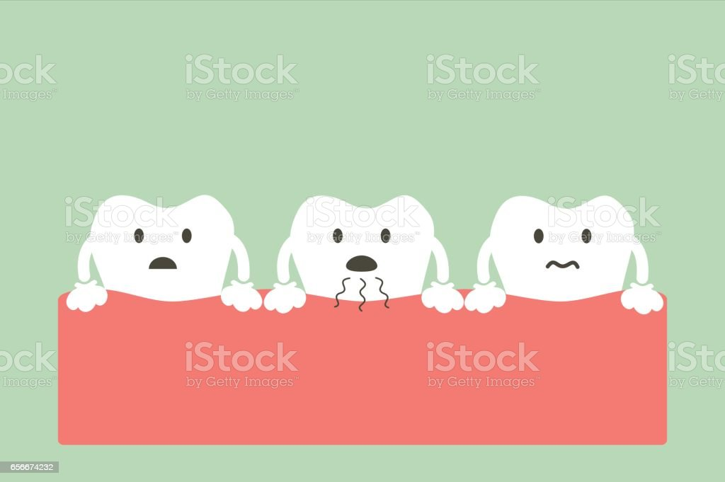 tooth is halitosis vector art illustration