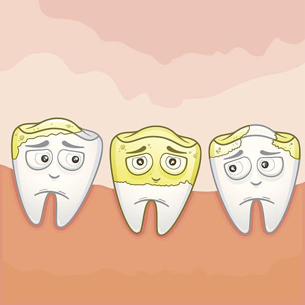 bildbanksillustrationer, clip art samt tecknat material och ikoner med tooth  plaque - tandsten