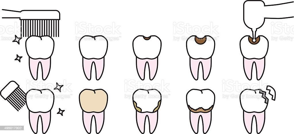 Tooth troubl.e Clean teeth and tooth decay vector art illustration