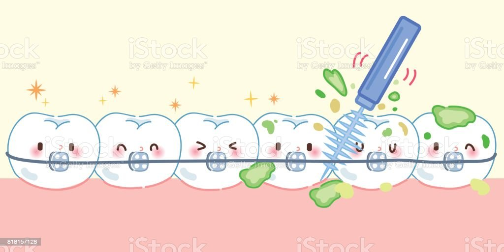 tooth wear brace with brush vector art illustration