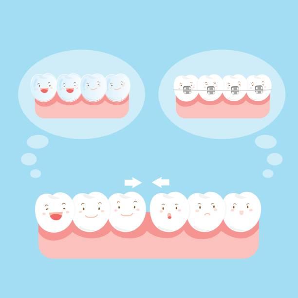 zahn tragen verschiedene klammer - manschetten stock-grafiken, -clipart, -cartoons und -symbole