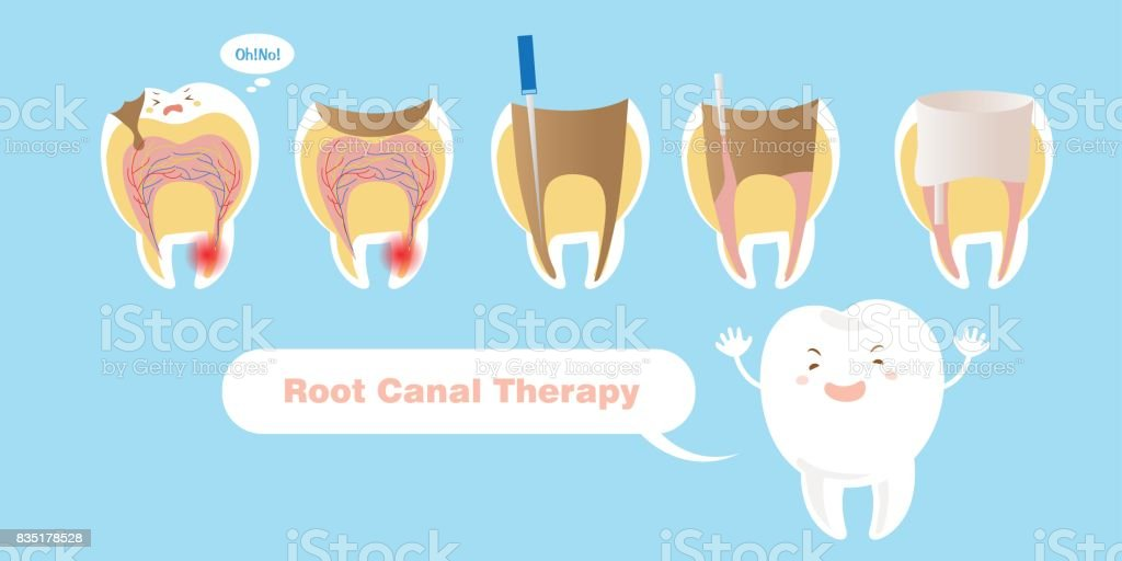 tooth with root canal therapy vector art illustration