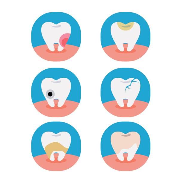 bildbanksillustrationer, clip art samt tecknat material och ikoner med tooth2 - tandsten