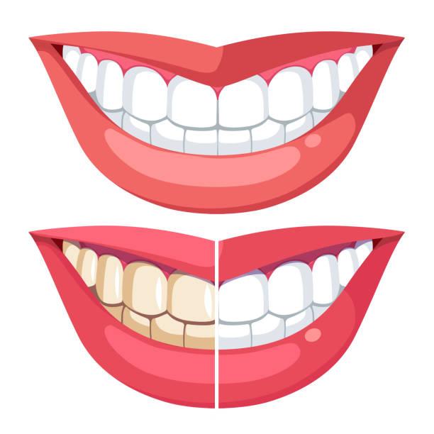 bildbanksillustrationer, clip art samt tecknat material och ikoner med toothy leende innan, efter blekning. jämföra tänder med plack & friska hygien vit. modell kvinnan mun, läppar. flat isolerade vektor - tandsten