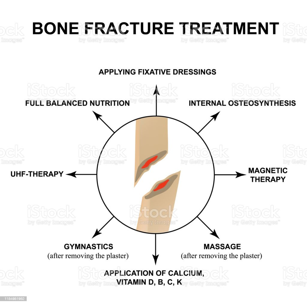 Treatment Of Bone Fractures Bone Fracture With Displacement
