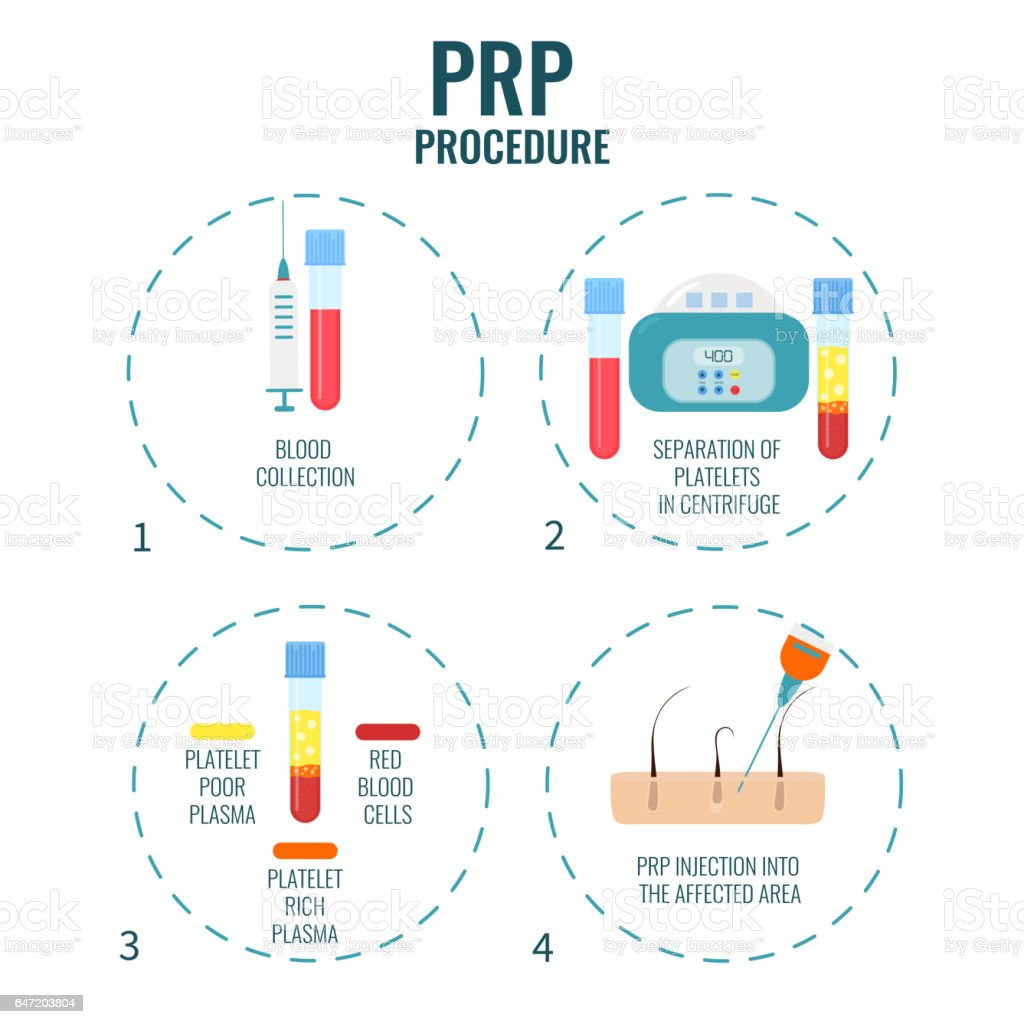 PRP treatment poster vector art illustration