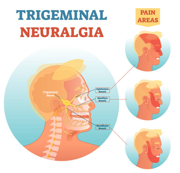 Trigeminal neuralgia medical cross section anatomy vector illustration diagram with facial neural network and pain areas. Trigeminal neuralgia medical cross section anatomy vector illustration diagram with facial neural network and pain areas.Head neurology scheme with ophthalmic, maxillary and mandibular branches. human jaw bone stock illustrations