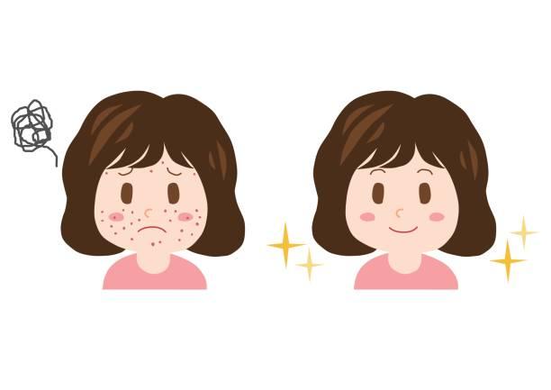 illustrations, cliparts, dessins animés et icônes de trouble de pimple(woman) - femme tache de rousseur