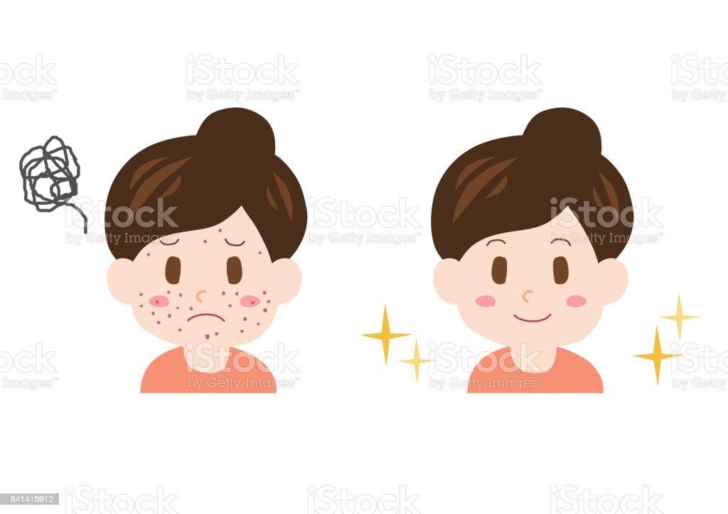 Pimple の問題 しかめっ面のベクターアート素材や画像を多数ご用意