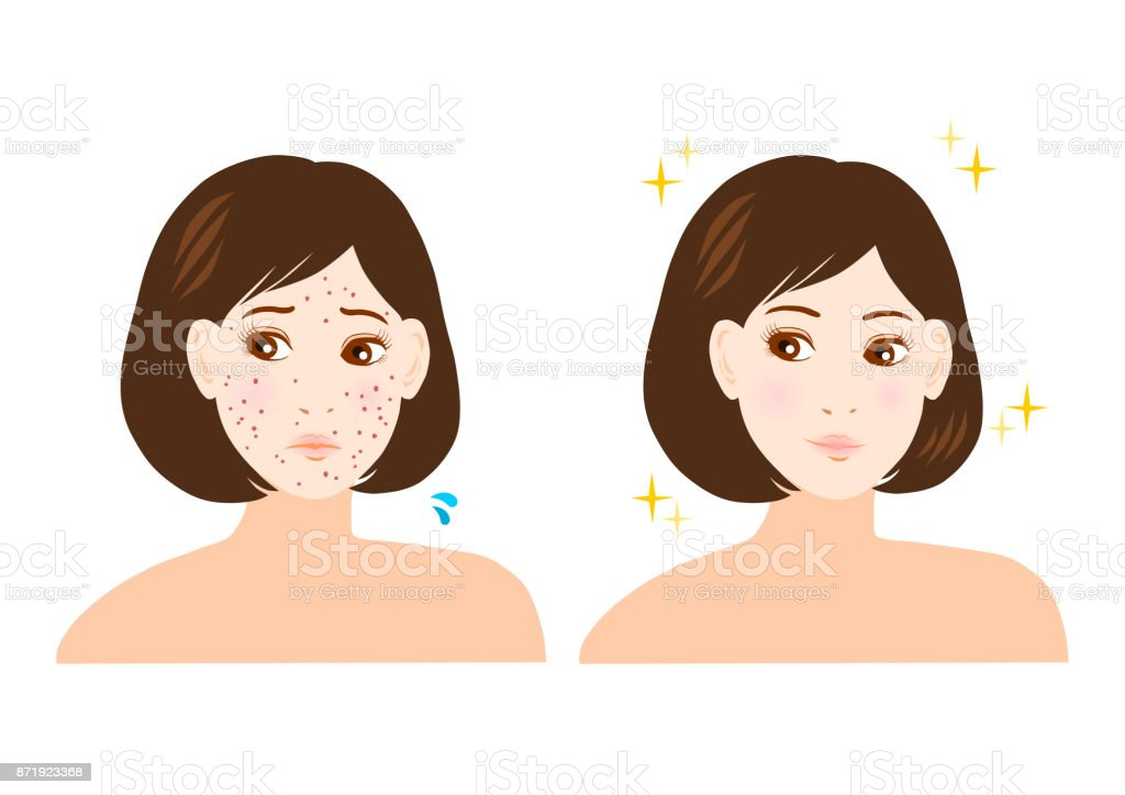 Trouble of pimple,stain and freckles(woman) vector art illustration