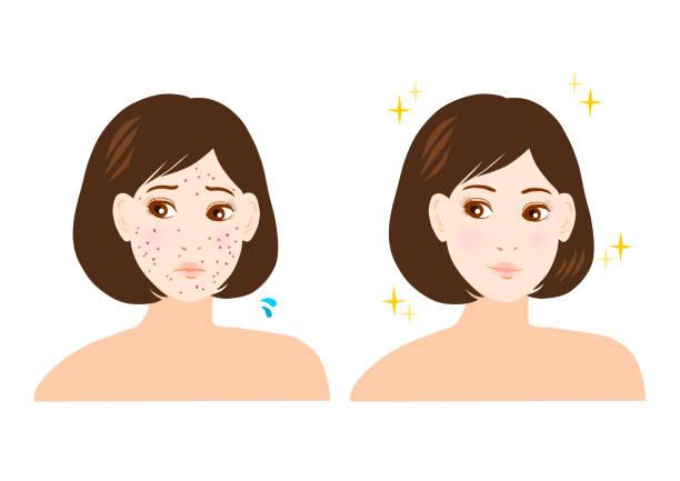 illustrations, cliparts, dessins animés et icônes de problème de bouton, de tache et de freckles(woman) - femme tache de rousseur