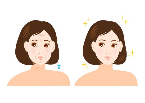 illustrazioni stock, clip art, cartoni animati e icone di tendenza di trouble of wrinkle and nasolabial fold(woman) - solo giapponesi