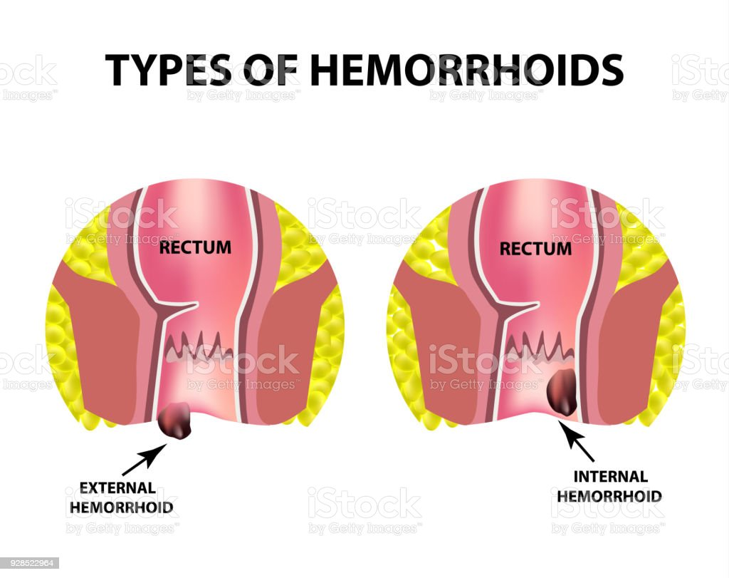 Two Types Of Hemorrhoids Are External And Internal Rectum Structure