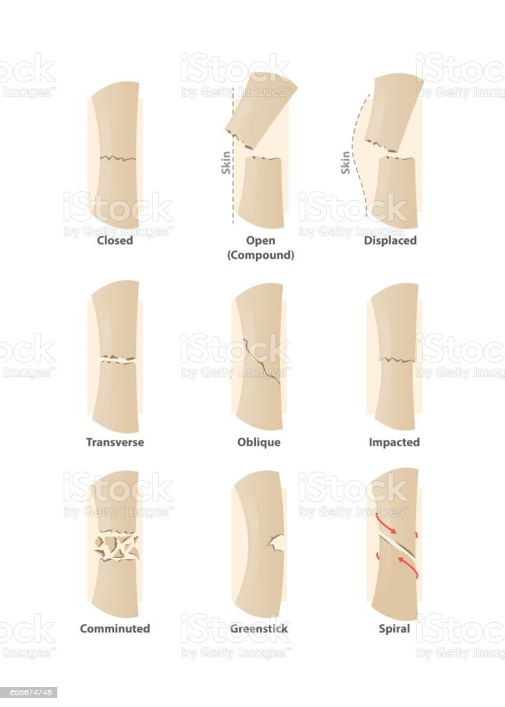 Type Of Fracture Illustration Vector On White Background Health