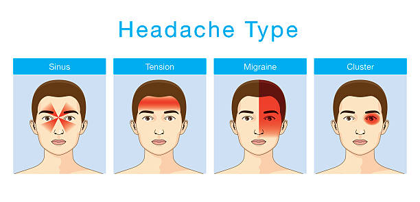 Type of headache Illustration about headaches 4 type on different area of patient head. headache stock illustrations