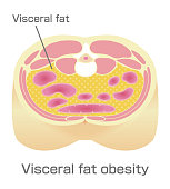 Type of obesity illustration . Abdominal sectional View (visceral fat ).