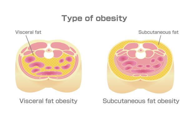 illustrazioni stock, clip art, cartoni animati e icone di tendenza di type of obesity illustration. abdominal sectional view. (visceral fat , subcutaneous fat) - obesity