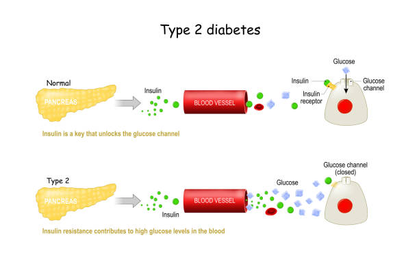 Types 2 of Diabetes Mellitus. Comparison of cell work in diabetes and in a healthy body vector art illustration