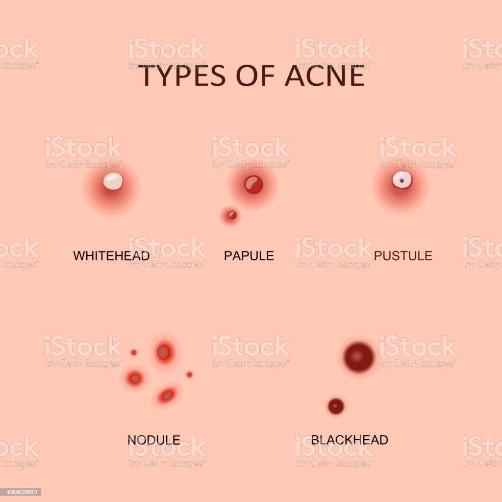 Arten von Akne und Pickel – Vektorgrafik