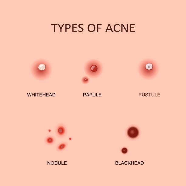 ilustraciones, imágenes clip art, dibujos animados e iconos de stock de tipos de acné y espinillas - dermatología