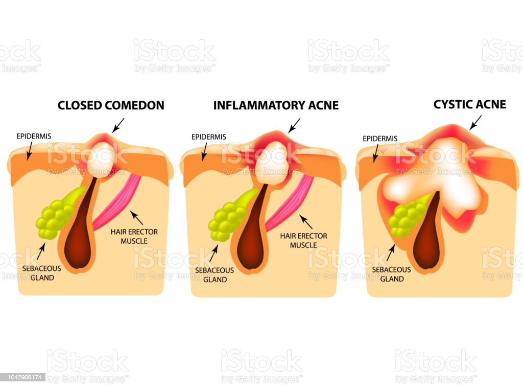 Types Of Acne Closed Comedones Inflammatory Acne Cystic Acne The