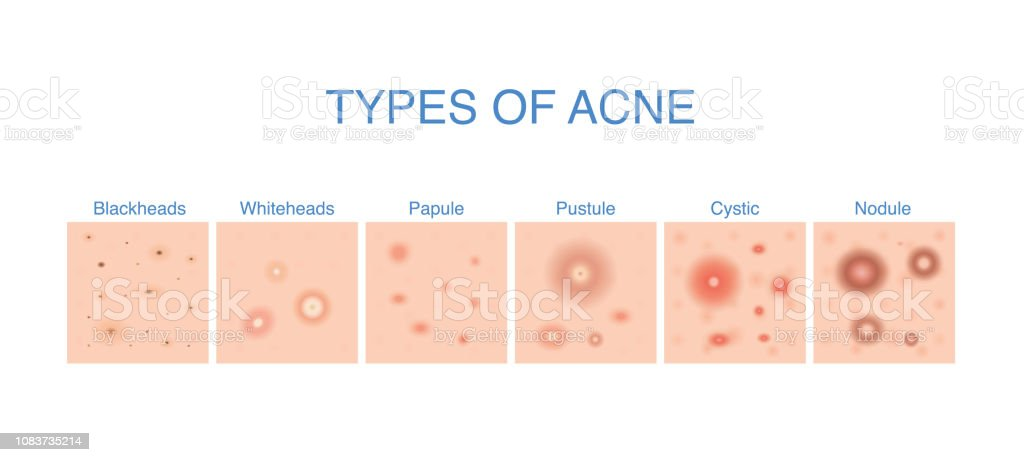 types of acne diagram for skin problems content  royalty-free types of acne  diagram