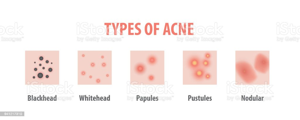 types of acne diagram illustration vector on white background beautytypes of acne diagram illustration vector on white background, beauty concept royalty free