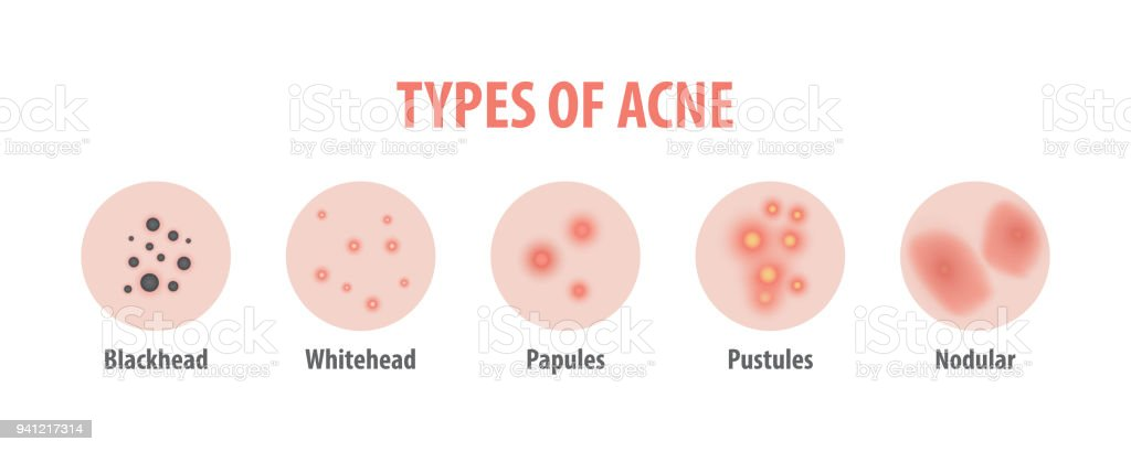 Types Of Acne Diagram Illustration Vector On White Background Beauty