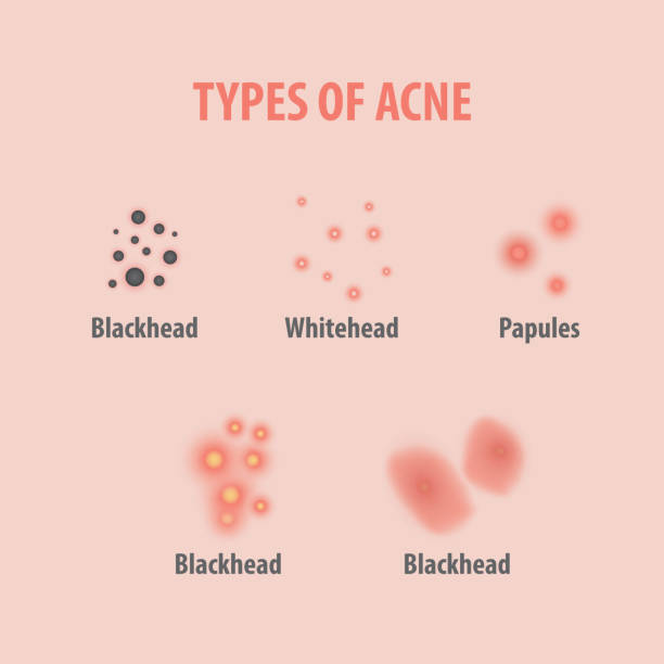 Types of acne illustration vector on white background, Beauty concept. vector art illustration