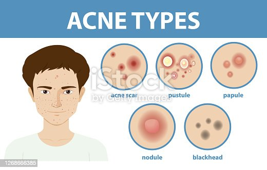 Types of acne on the skin or pimples illustration