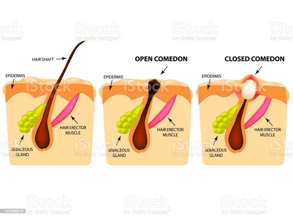 Types Of Acne Open Comedones Closed Comedones Skin Structure