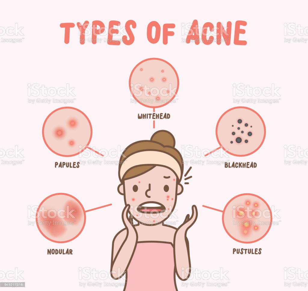Types of acne with woman cartoon illustration vector on pink background. Beauty concept. vector art illustration