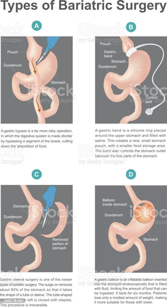 Types of bariatric surgery. vector art illustration