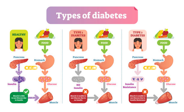 Types of Diabetes simple medical vector illustration scheme. Health care information diagram. Types of Diabetes simple medical vector illustration scheme. Health care information diagram with Type 1 and Type 2 diabetes. medical diagram stock illustrations