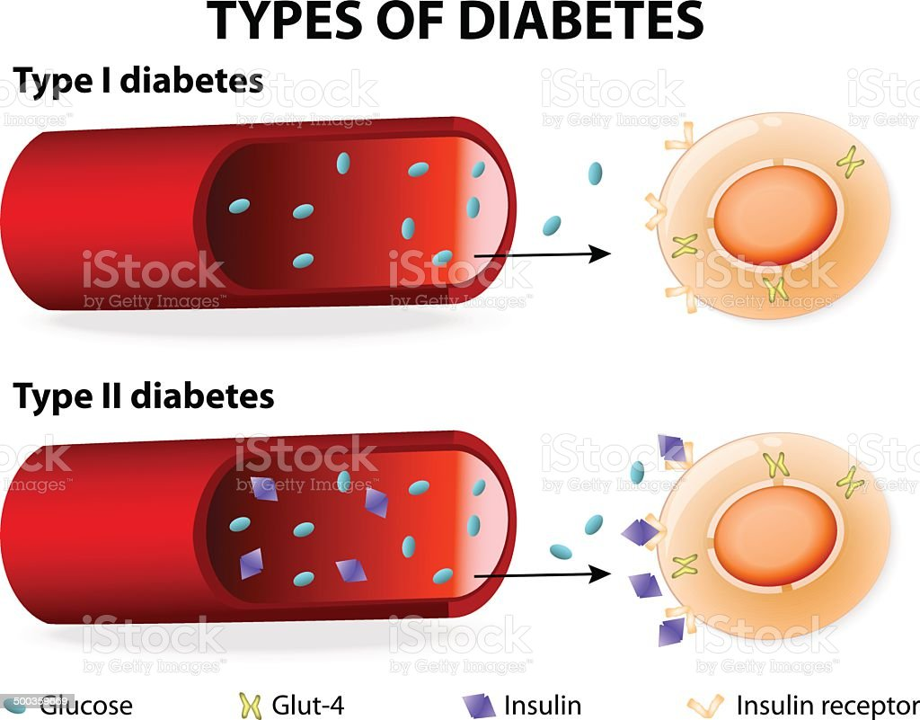 Types of Diabetes vector art illustration