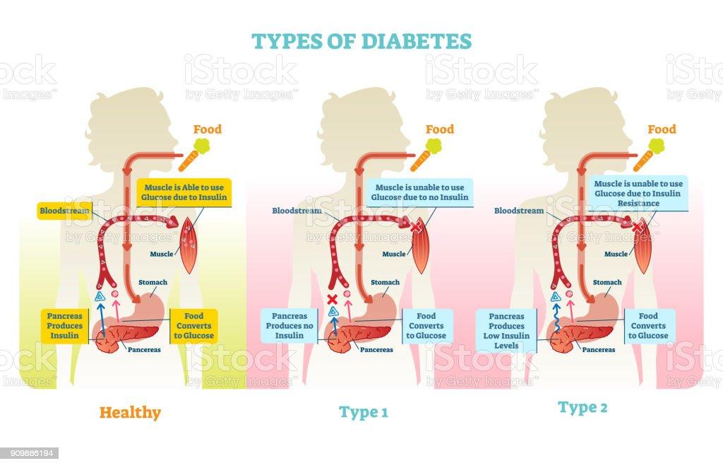 Best Insulin Illustrations  Royalty