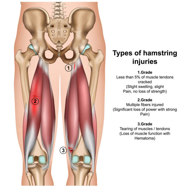 types of hamstring injurys 3d medical vector illustration on white background types of hamstring injurys 3d medical vector illustration on white background eps 10 hamstring stock illustrations
