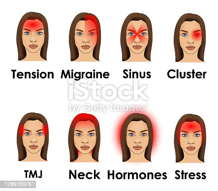 istock Types of headache illustrated on a woman face 1289150761