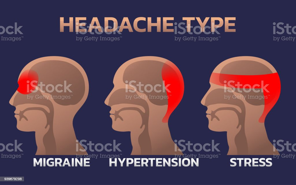 Types Of Headaches Infographics Design Template Icon ...
