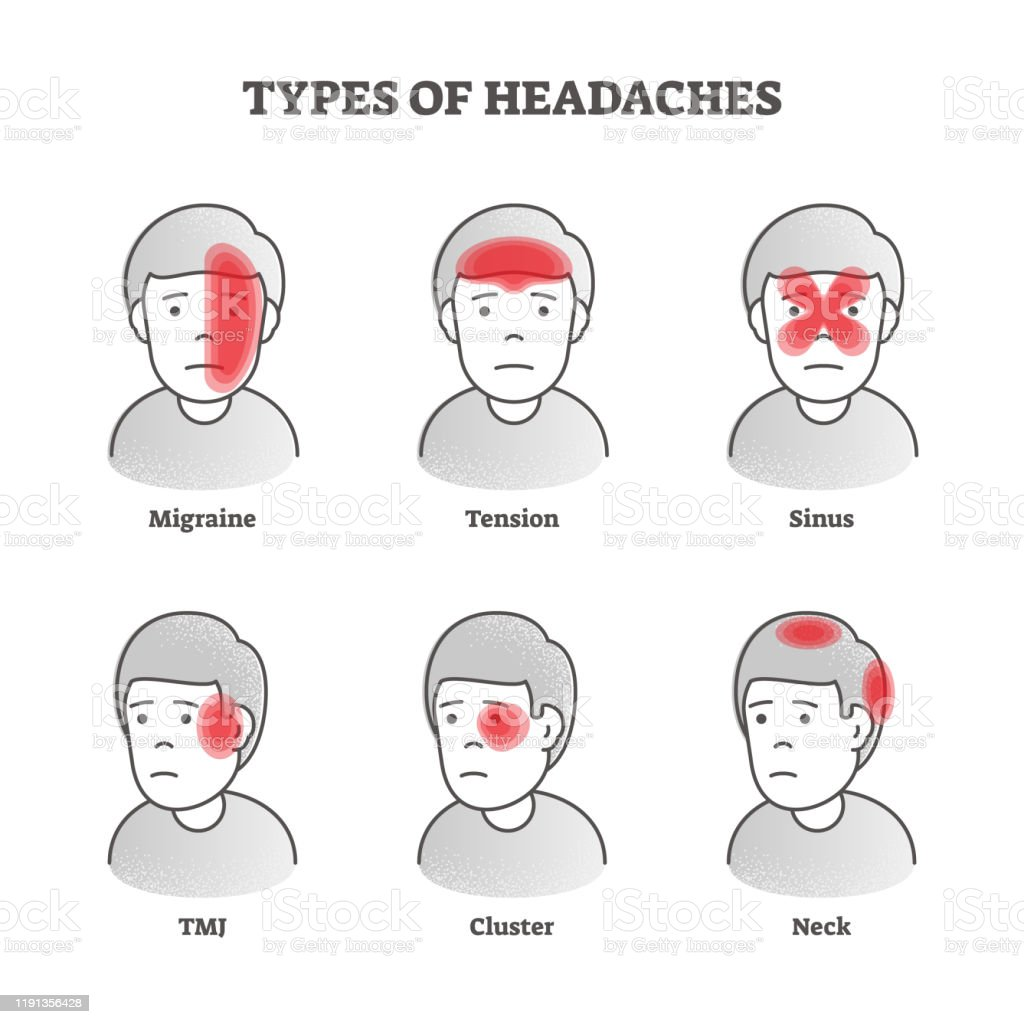 Types Of Headaches Vector Illustration Labeled Educational Brain Pain Set  Stock Illustration - Download Image Now - iStockiStock