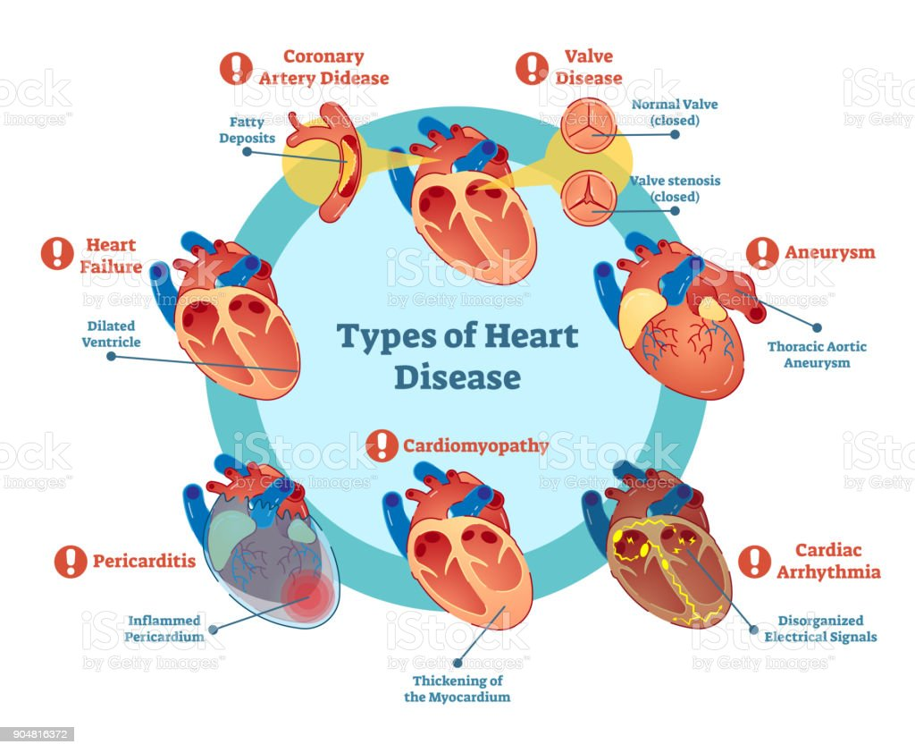 Best Heart Disease Illustrations  Royalty-free Vector Graphics  U0026 Clip Art