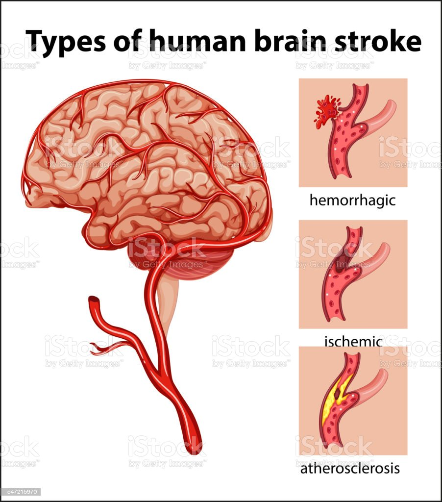 Types Of Human Brain Stroke Stock Vector Art More Images Of