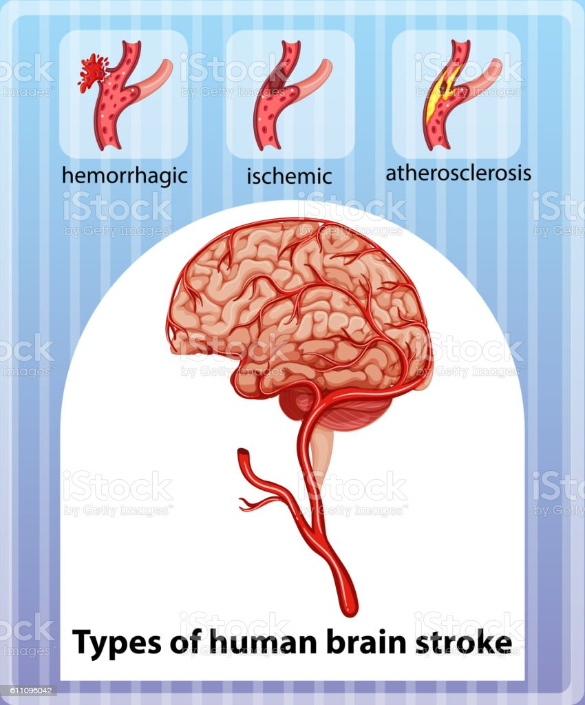 Ilustración de Tipos De Cerebro Humano Accidente Cerebrovascular y ...